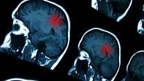 Aprende inglés: la nueva esperanza para los enfermos de cáncer cerebral