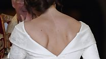 Princess Eugenie 'proved the scar is something to be proud of'