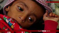 هشدار سازمان ملل در مورد خطر قحطی در یمن