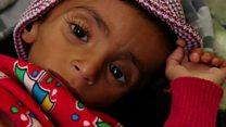 الموت جوعا يتهدد 13 مليون يمني خلال الأشهر المقبلة