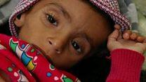 """Yemen, al borde de """"la peor hambruna en 100 años"""""""
