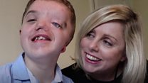 'My son was born with half a face'
