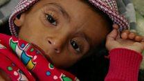 เยเมนเผชิญวิกฤตขาดแคลนอาหารครั้งเลวร้ายที่สุดในโลกในรอบ 100 ปี