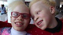 The eye doctor helping albino children see