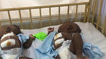 Hospital wey separate conjoined twins tok how dem do am