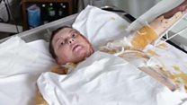 Dead acid victim's defiant message
