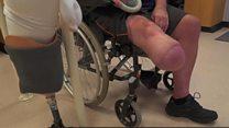 'I lost my leg to type 2 diabetes'