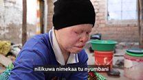 Kisiwa kilicho magharibi mwa Tanzania ambacho ni kimbilio kwa Albino