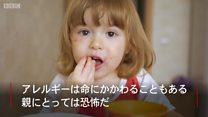 世界中で増える食物アレルギー 科学者たちの見解