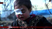 कश्मीर: पैलेट गन की शिकार 20 महीने की हीबा