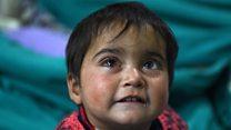 काश्मीर: सुरक्षा दलांच्या छर्ऱ्यांमुळे लहानग्या हिबाचा डोळा दुखावला