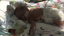Support group for dads of premature babies