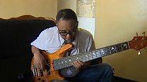 પોતાના મગજના ઑપરેશન વખતે પણ ગિટાર વગાડનાર સંગીતકાર