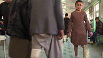 سور صلیب: هر کال لسو زرو معلولو افغانانو ته مصنوعي غړي اچوو