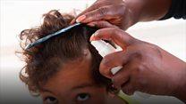 નાની ઉંમરે વાળ સફેદ થવાનું કારણ શું છે?