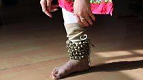 एक पैर गंवाने के बाद भी बनी कथक डांसर