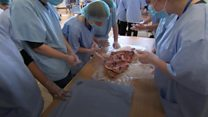 Real operating theatre brought to Bristol school