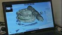 مقومات أسنان مصنعة من مواد حيوية ومطبوعة بطابعات ثلاثية الأبعاد