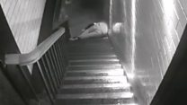 Man pushed down stairs breaks back