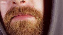 У бороді більше бактерій, ніж у собачій шерсті: як це визначили?
