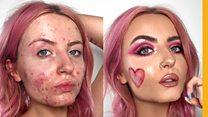 How I got my acne glow