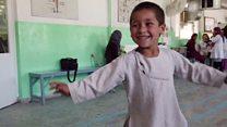 Dancing Afghan amputee boy goes viral
