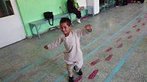 El niño amputado que baila de felicidad al recibir una nueva prótesis