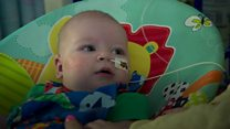 Ollie's parents appeal for organ donations