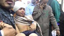 यमन में मरते बच्चे और आम लोग