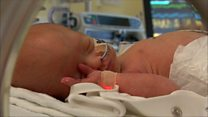 Baby operated on while in womb