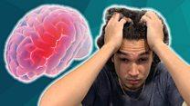 Migraines: More Than A Headache