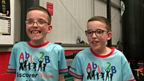 Boxing helps twins walk for first time