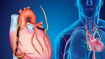 انقلاب سلولهای بنیادین در درمان بیماریهای قلبی