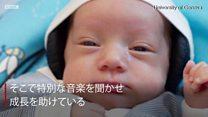 音楽で脳を健やかに 早産のハイリスク赤ちゃんに効果、スイス研究チーム