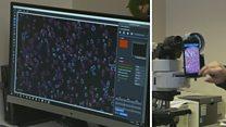 تقنيات تصوير دقيقة لقراءة عينات المرضى باستخدام أجهزة بسيطة ومتاحة للجميع