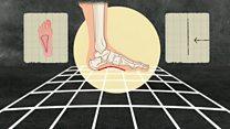 四十年飙一大截 人类脚掌急速进化之谜