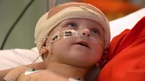 Little girl treated with brain electrodes