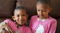 Twins meet surgeons who separated them