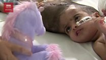 Operasi pemisahan anak kembar siam dempet kepala asal Pakistan berhasil dilakukan