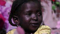 ਕੈਂਸਰ ਨੂੰ ਮਾਤ ਦੇਣ ਵਾਲੀ 6 ਸਾਲਾਂ ਕੁੜੀ ਨੂੰ ਮਿਲੀ ਨਵੀਂ ਅੱਖ