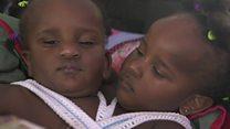 Jumelles siamoises: impossible de les séparer