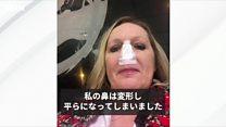 病気で鼻が崩壊、切除……付け鼻で人生を取り戻した女性の話