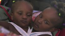 Сиамские близнецы из Сенегала пытаются жить как все дети