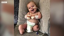 Baby loses all four limbs to sepsis