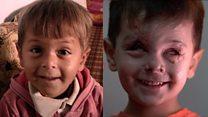 เด็กชายผู้สูญเสียดวงตาสองข้างจากสงครามซีเรีย