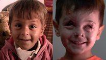 O rosto de um menino que traduz a tragédia e o horror da guerra na Síria