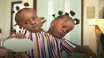 As gêmeas siamesas que não param de surpreender os médicos