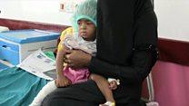यमन में ज़िंदगी की जंग लड़ रहे लोग