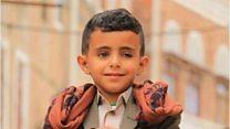 بصوته الساحر طفل يمني يخطف الأسماع في شوراع صنعاء