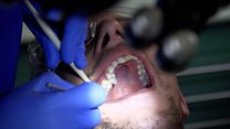 'My teeth are all rotten'